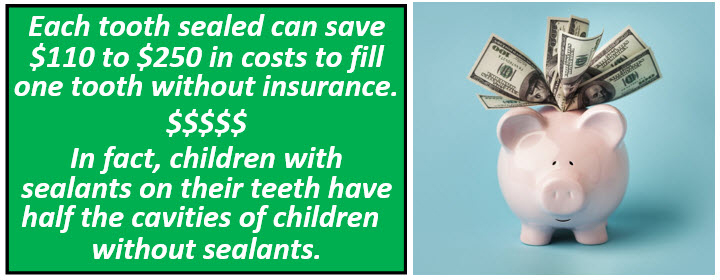Each tooth sealed can save $110 to $250 in costs to fill one tooth without insurance